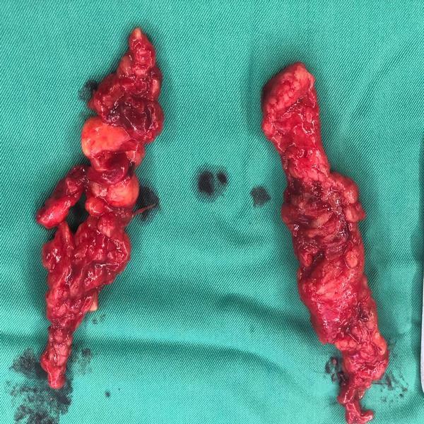 غده های لنفاوی چپ و راست لگن که در جراحی سرطان پروستات برداشته و خارج شده است