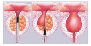 درمان بزرگی خوش خیم پروستات