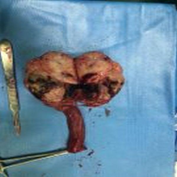 تومور بزرگ بیضه
