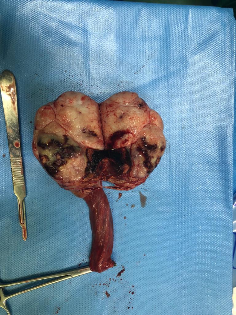 تومور بزرگ بیضه که تمام بافت بیضه را تخریب کرده و توسط دکتر نیرومند رادیکال ارکیدکتومی شد.