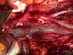 عمل RPLND در یک جوان ۲۴ ساله مبتلا به تومور بیضه نان سمینوما (Non seminoma stage llA) که توسط دکتر نیرومند جراحی شد