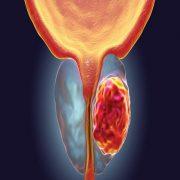 سرطان پروستات لوکالیزه