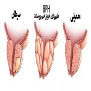 هایپرپلازی خوش خیم پروستات
