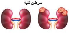 علائم سرطان کلیه