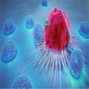 نادرترین نوع سرطان پروستات