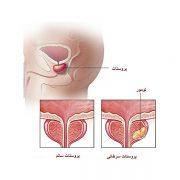نادر ترین نوع سرطان پروستات
