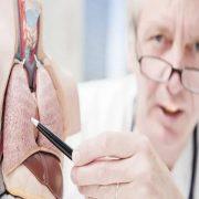 جراحی برای درمان سرطان کلیه