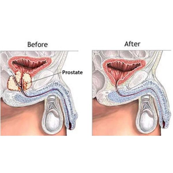 جراحی رادیکال پروستات- قبل و بعد
